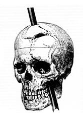 Phineas_gage_-_1868_skull_diagram